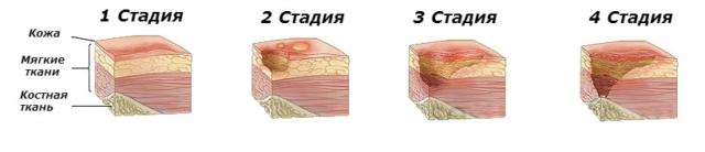 Язва кожи симптомы